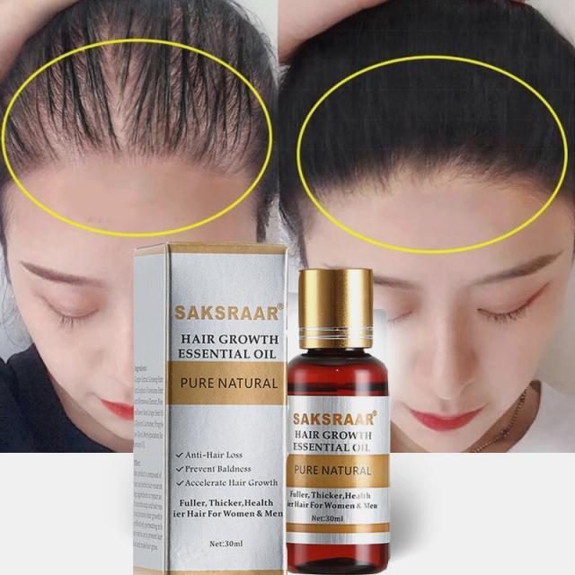 hair growth serum|hair growth|hair loss